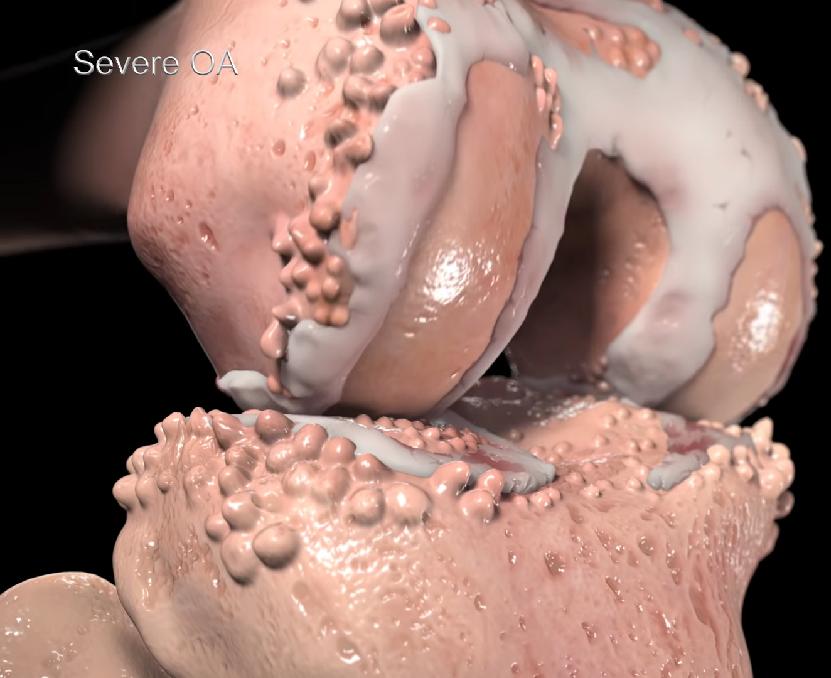 Artroza kolana
