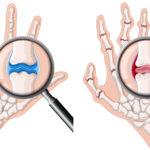 Objawy mogące towarzyszyć chorobom reumatycznym